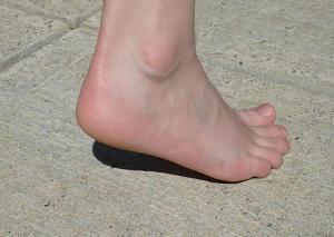overpronated feet