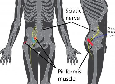 the piriformis muscle and the sciatic nerve